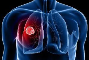 Больные туберкулезом теряют возможность  своевременной диагностики