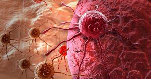 Больные раком не должны быть наедине с этой проблемой