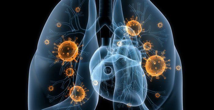 У Новій Каховці — спалах пневмонії