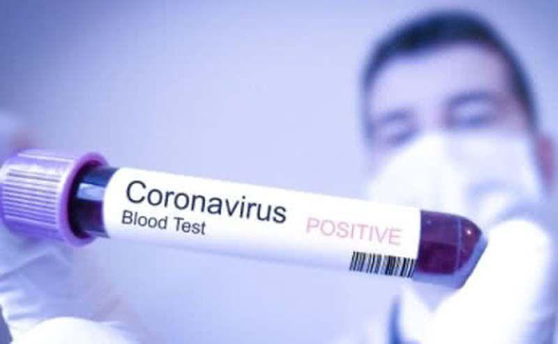 На Сумщині зафіксували перший випадок занедужання на коронавірус