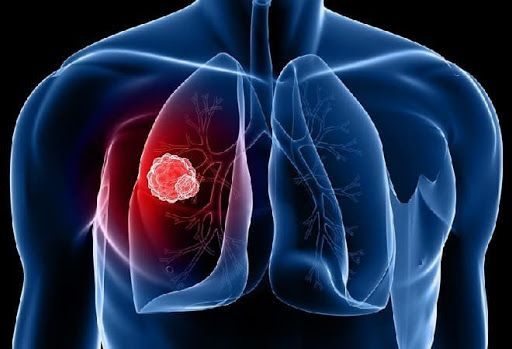 Хворі на туберкульоз втрачають можливість своєчасної діагностики